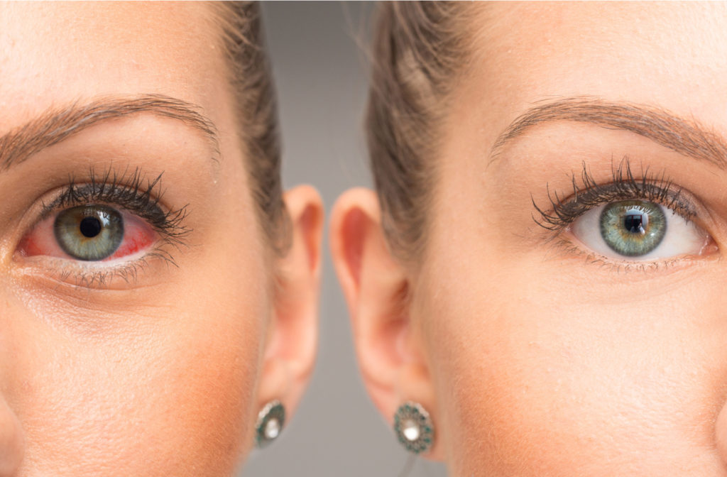 photos of a lady with green eyes side by side before and after dry eye treatment